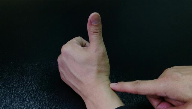 手腕酸痛~復健科醫生說這是媽媽手,什麼是媽媽手呢?